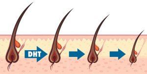 implant de păr